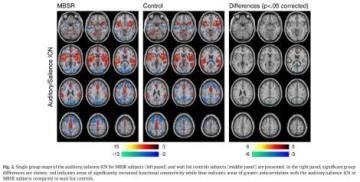 Conectividad neuronal